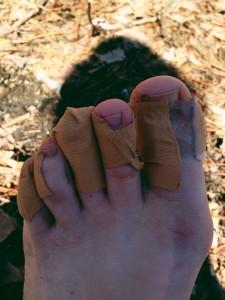 blistery feet