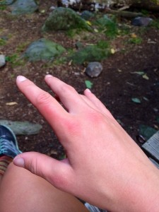Second degree sunburn on both hands.  Thanks tree line.