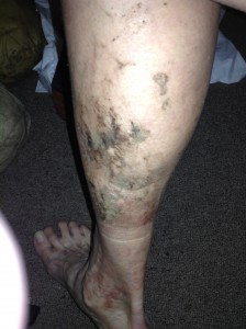 My dirty, muddy, rashy leg after only three days!