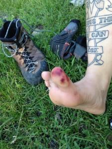 My super sexy lollipop toe. No it doesn't hurt , I left  the feeling in my feet in PA :P