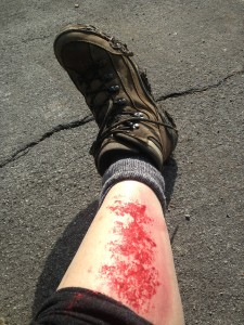 Abrasions are the worst!