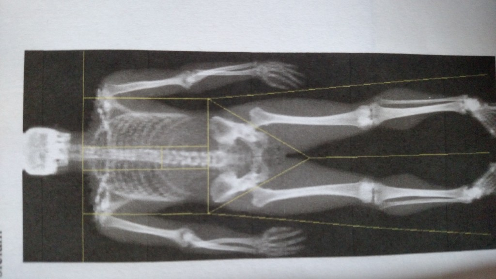 Andrew's skeleton!