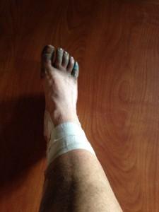 dirty foot shin splints