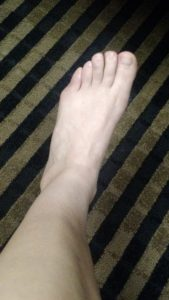 Tailor's Bunion - a deformation of the fifth metatarsal