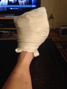 Icing some serious plantar fasciitis.