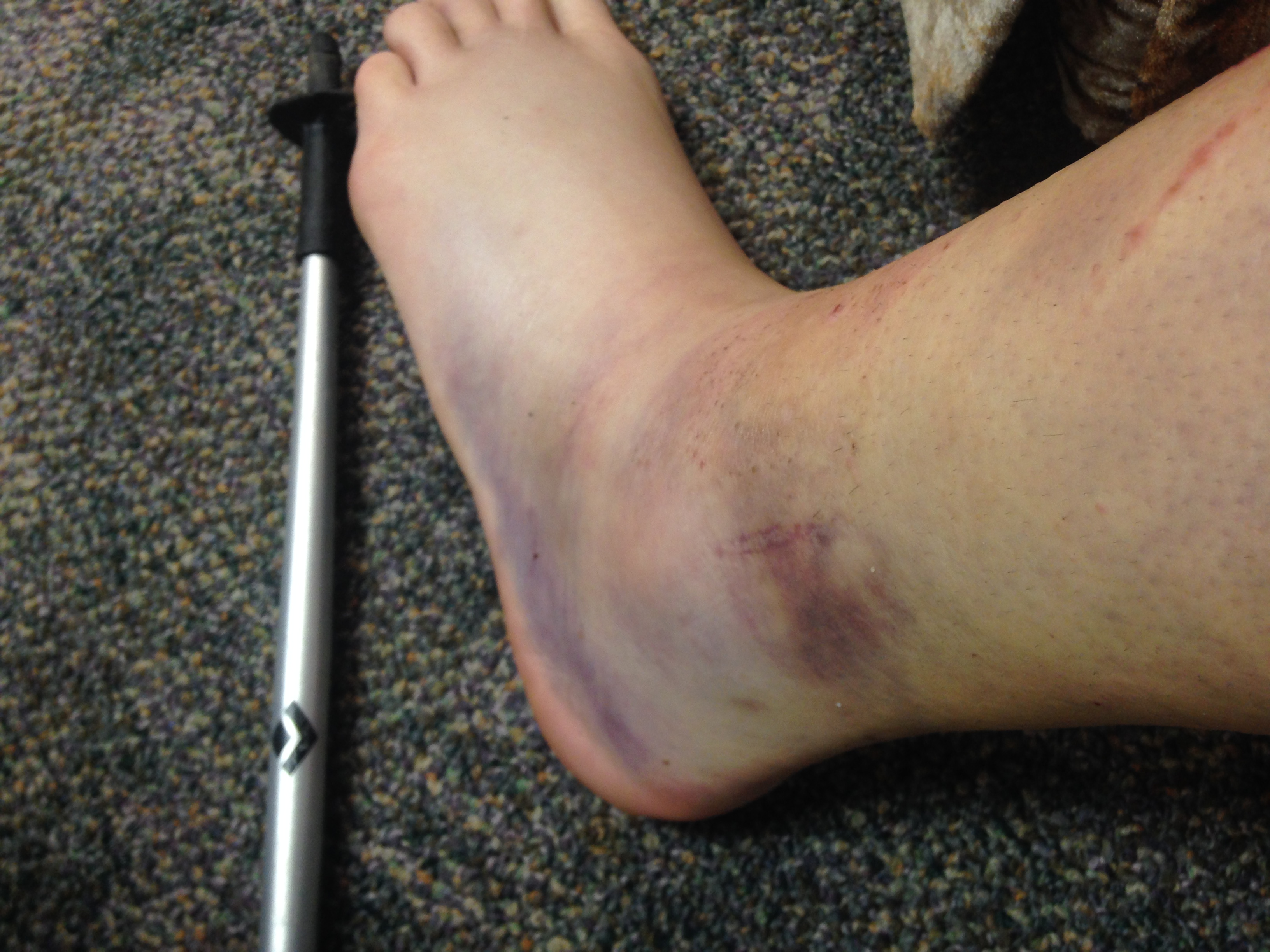Look at that monster. The bruising goes around the whole foot and halfway up the back of my calf.