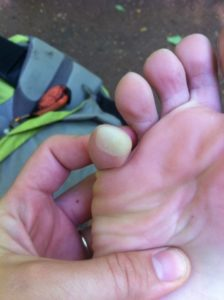 pinky-toe-blister