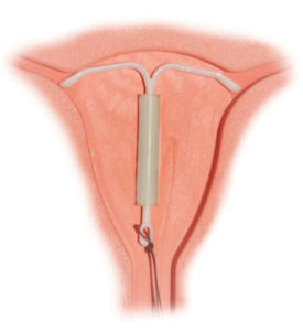 550px-mirena_intrauterine_system