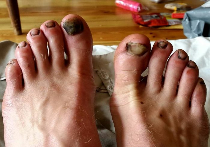dirt-toes