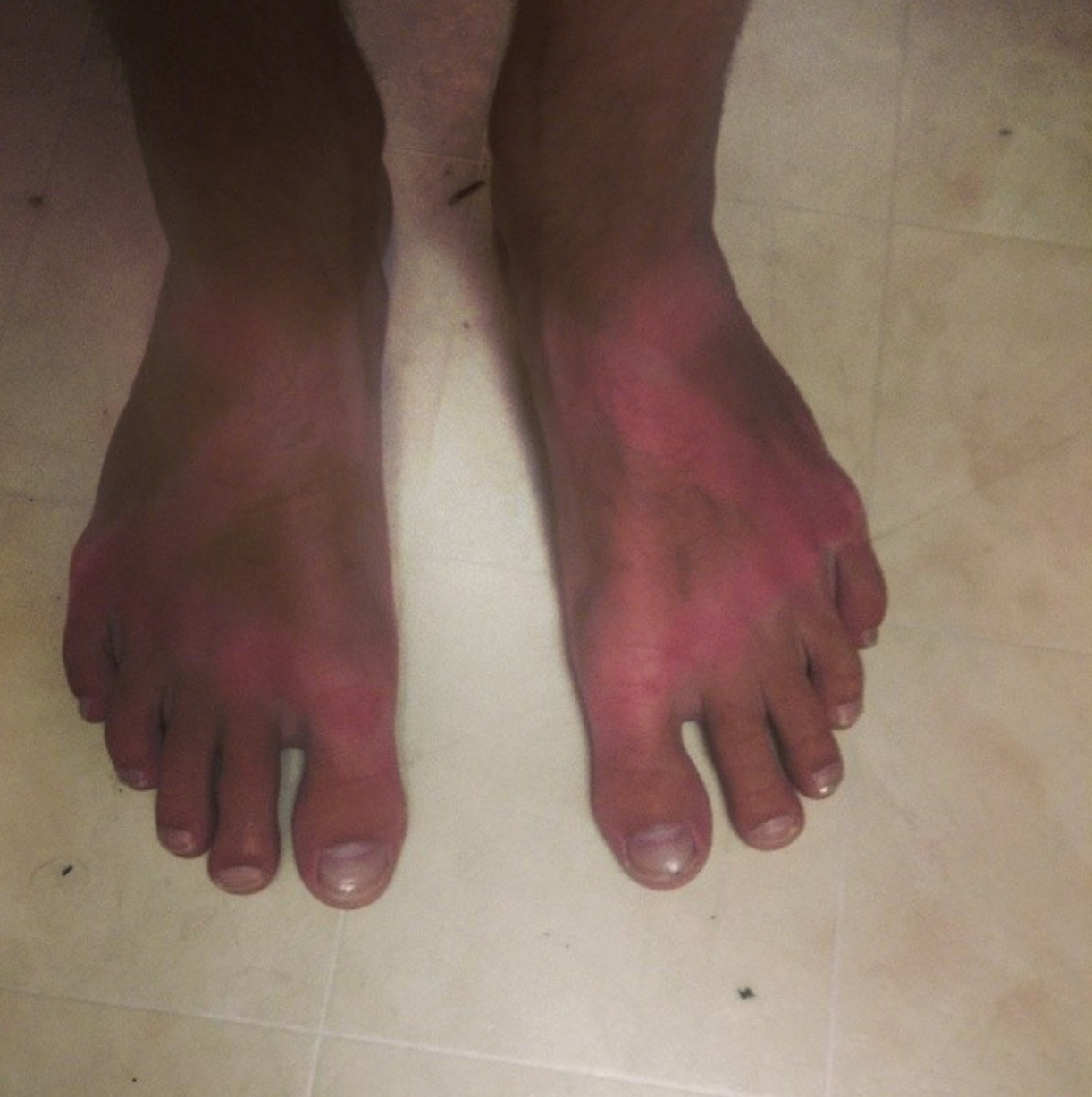661b765c400a Sunscreen is important to remember after you have Chaco strap tan lines