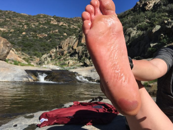 Blisters!