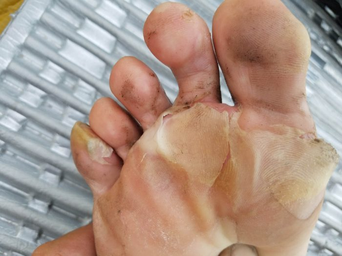 foot with blisters
