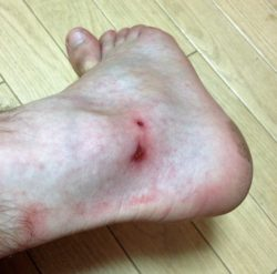 foot injury