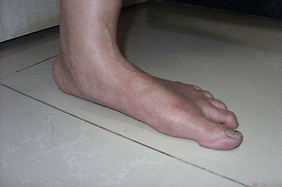 foot showing fallen arch